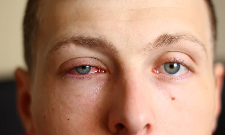 What is the Difference Between Viral and Bacterial Pink Eye?