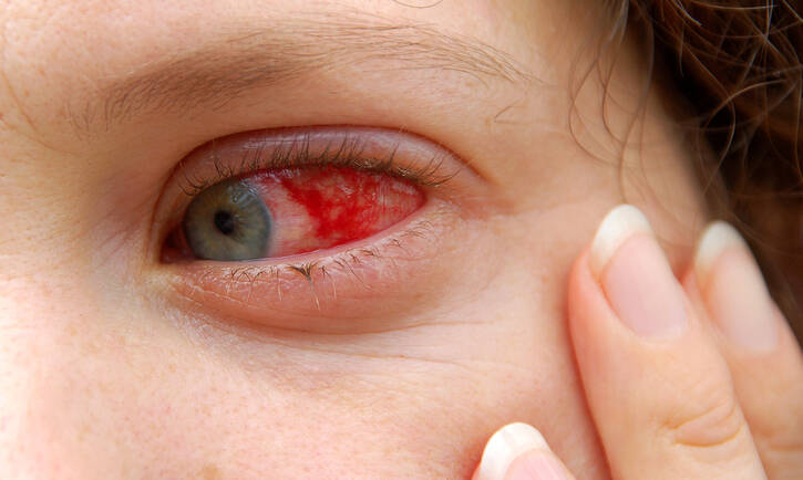 Why You Should Visit The Eye Doctor To Diagnose Pink Eye